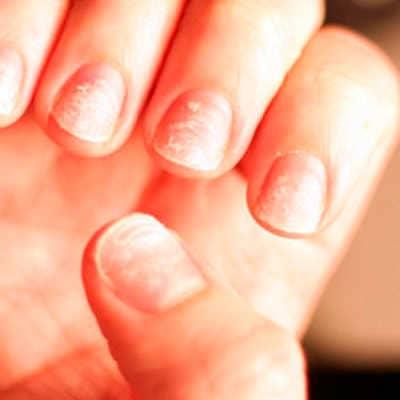 Слоятся ногти - причины