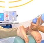 Эффективное лечение пяточной шпоры