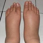 Почему опухают ноги