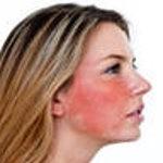 Чувствительная кожа или аллергия