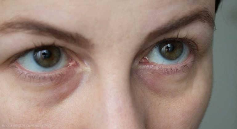Как быстро избавиться от синяков под глазами